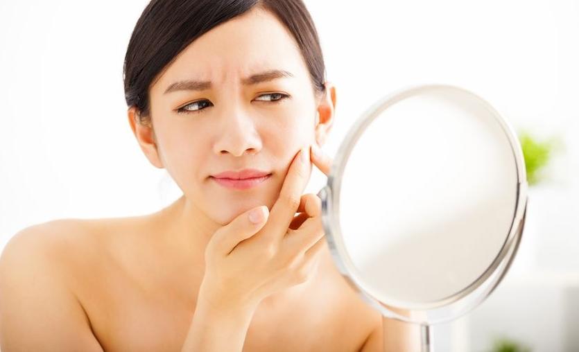 ¿Sabías que tu acné puede venir determinado por tus genes?